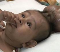 Роди се бебе с два мозъка (Потресаващи Снимки + Видео)