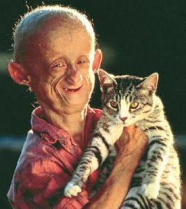 bolest-3-progeria
