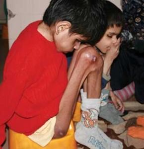 Недохранването е една от причините за висока смъртност по домовете