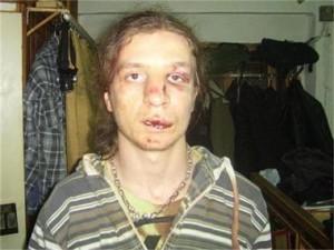 Радослав Божинов след побоя на полицаите