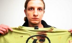 Две седмици след побоя, Радослав още пази тениската от фаталната нощ