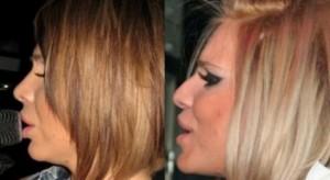 Корекцията на носа на Алисия е едва забележима