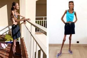 Жив скелет след диета