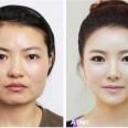 козметични операции
