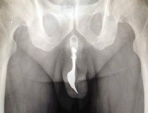 пенис вилица