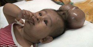 бебе с две глави