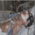дете бито болница