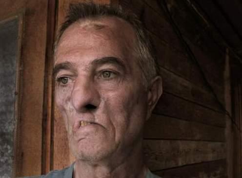 Петър Железов събира кураж за поредната тежка операция