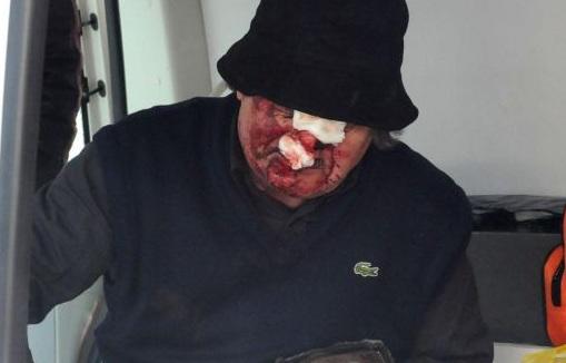 украинци пребит мъж