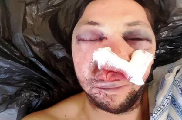Журналистът Стоян Тонев след жестокия побой